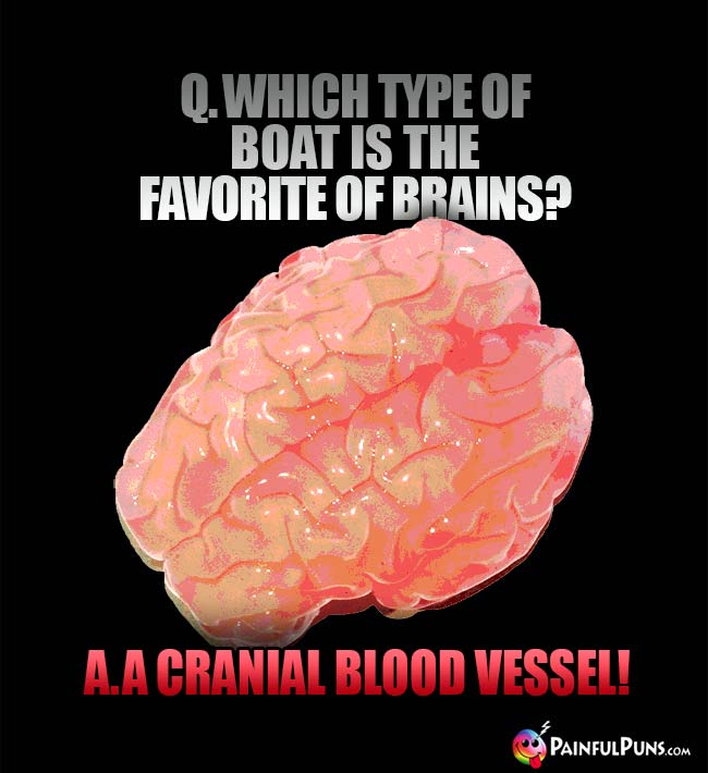 Q. Which type of boat is the favorite of brains? A. A cranial blood vessel!