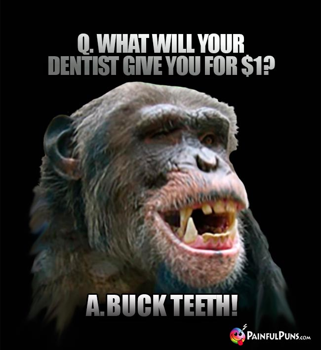 Q. What will your dentist give you for $1? A. Buck teeth!