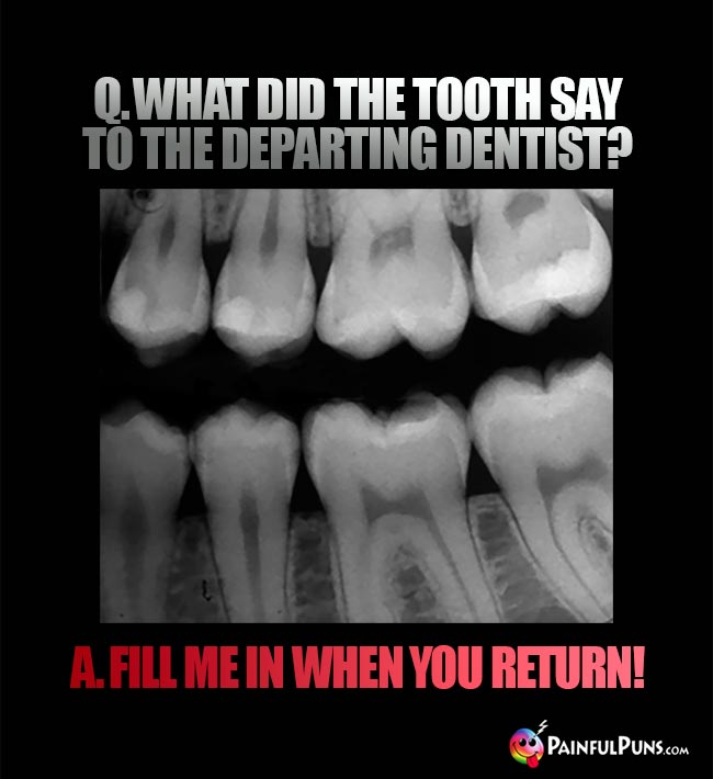 Q. What did the tooth say to the departing dentist? A Fill me in when you return!