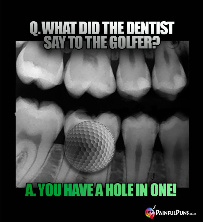 Q. What did the dentist say to the golfer? A. You have a hole in one!