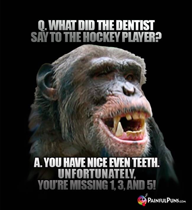 Q. What did the dentist say to the hockey player? A. You have nice even teet. Unfortunately, you're missing 1, 3, and 5!