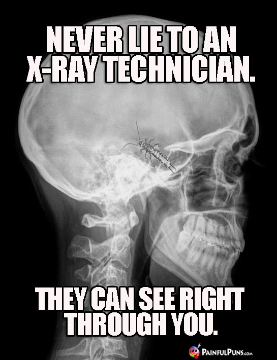 Never lie to an X-ray technician. They can see right through you.